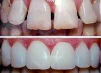 Cosmetic Dentistry - William Sanders D.M.D.