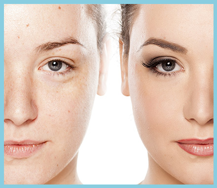 Amarillo Skin Treatment - Dermaesthetica Med Spa – Laser Clinic